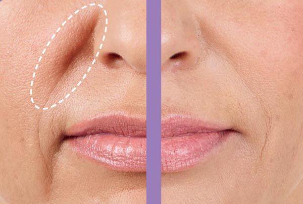 solco nasolabiale ripristino volumi zigomo guancia e zona malare con filler di acido ialuronico. effetto lifting del solco nasogenieno
