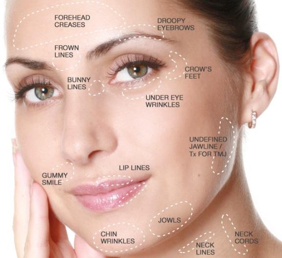 botulino aree trattabili con tossina botulinica trattamenti di bellezza