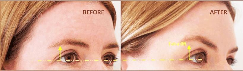 Lifting non chirurgico del sopracciglio Sollevamento sopracciglio con l'utilizzo del botox