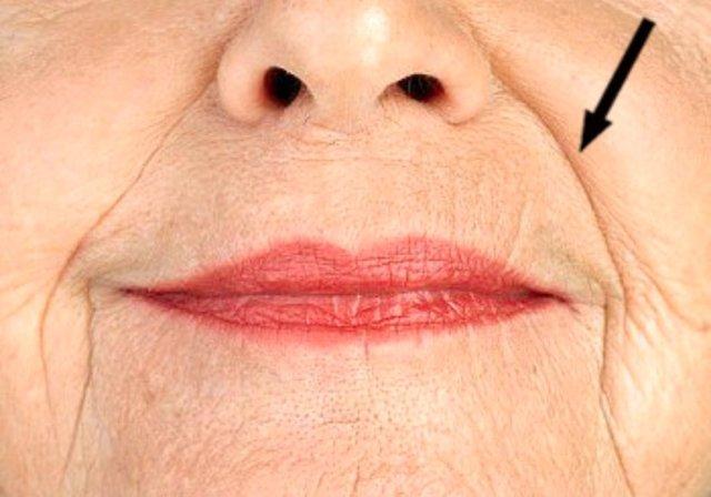 solco nasolabiale rughe naso labiali rughe naso geniene