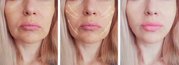trattamento rughe periorali, rughe della marionetta, solco nasogenieno, filler labbra