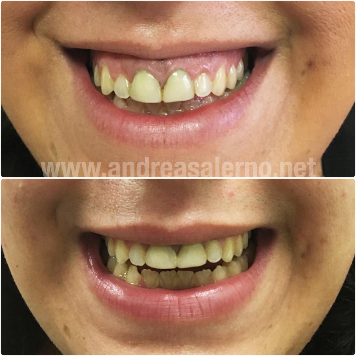 botox gummy smile sorriso gengivale medicina estetica roma napoli